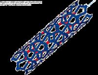 Зоны разрушения имплантанта (выделены красным цветом)