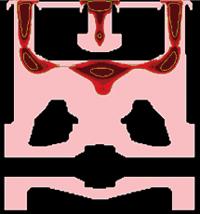 Рис. 7. Дефекты усадочного характера