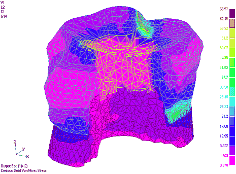 Рис. 2. Изменение интегральных напряжений в тканях зуба с керамической вкладкой при ее глубине 0,5, 0,75 и 1 ГВ соответственно (напряжения приведены для суммы двух внешних загружений)