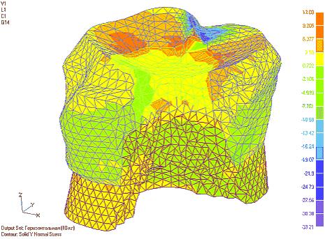 Рис. 3. Изменение нормальных напряжений по оси Y в тканях зуба с композитной вкладкой при ее глубине 0,5, 0,75 и 1 ГВ соответственно (напряжения приведены для горизонтального загружения)