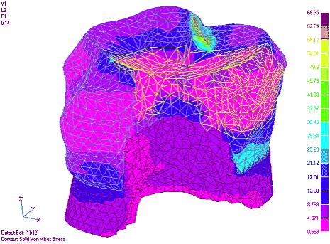 Рис. 4. Изменение интегральных напряжений в тканях зуба с вкладкой типа МО, ОД - керамической и композитной соответственно (напряжения приведены для суммы двух загружений)