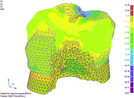 Рис. 5. Изменение нормальных напряжений по оси Y в тканях зуба с вкладкой типа МОД - композитной и керамической соответственно (напряжения приведены для суммы двух загружений)