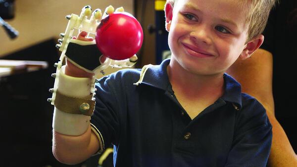 Протез руки Robohand, созданный с помощью 3D-принтера Makerbot, - альтернатива обычному дорогому протезированию